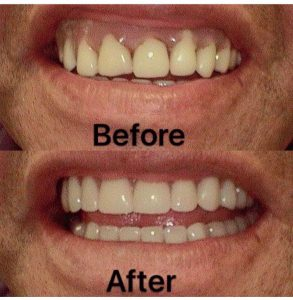 DENTURE-BEFORE-AND-AFTER(4)