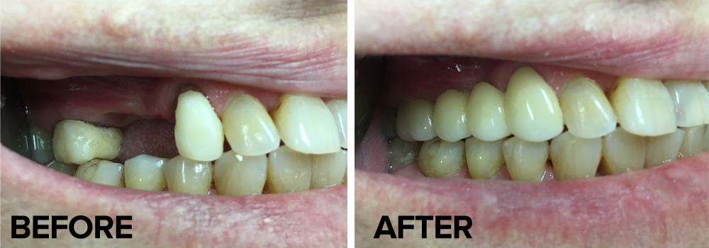 before-after-4-27